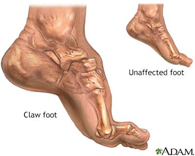 FOOT pain - The Brooklyn Hospital Center